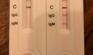 Testos ràpids IgG-IgM.