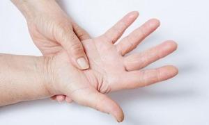 Un 1% de la població pateix lupus.