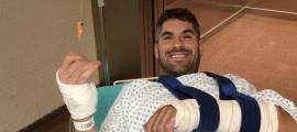 Cristian España es fractura el radi de la mà esquerra